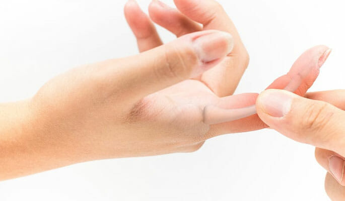 Jammed Finger Treatment - Physician Partners Of America