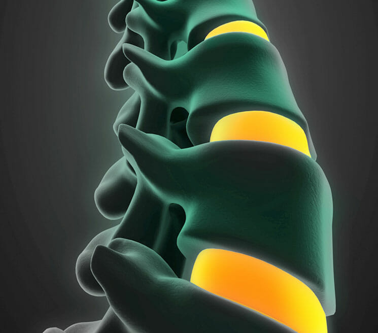 Discectomy, its Causes & Treatment - Physician Partners Of America