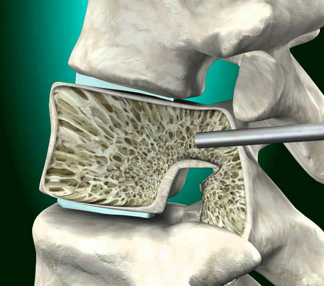 Kyphoplasty and Vertebroplasty Treatment at Physician Partners Of America
