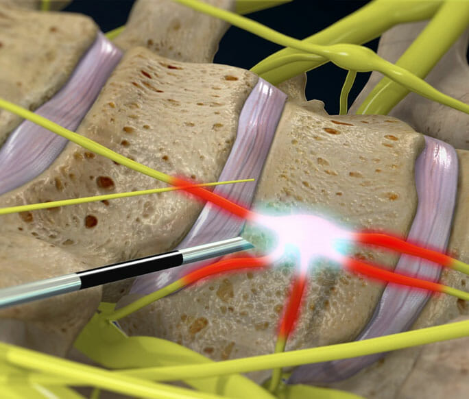 Stellate Ganglion Block - symptoms, Treatment at Physician Partners Of America